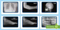 Fotografii cu radiografii