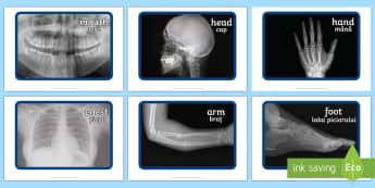 X ray Display Photos English/Romanian