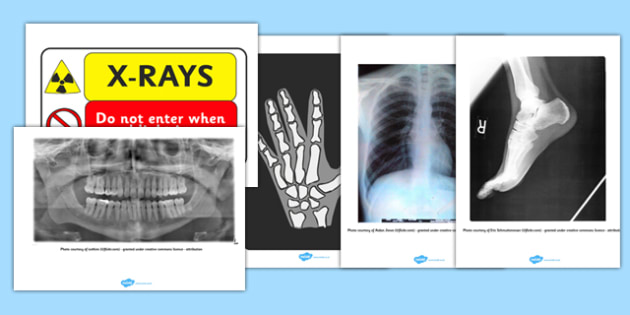 X-Ray Display Signs - Hospital Role Play, hospital resources, people who help us, nurser, doctor, hospital, ward, bandages, role play, display, poster