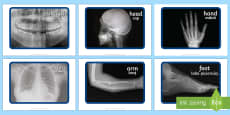 X-ray Display Photos English/Romanian