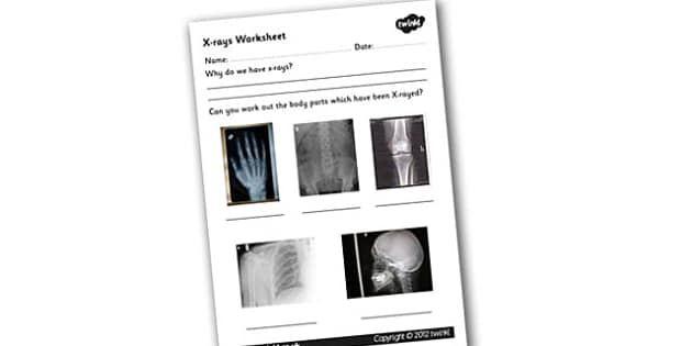 X-ray Worksheet - xray, x-ray, xray worksheet, bones, the human body, the human skeleton, xray equipment, skeleton worksheet, bones worksheet, ks2 science