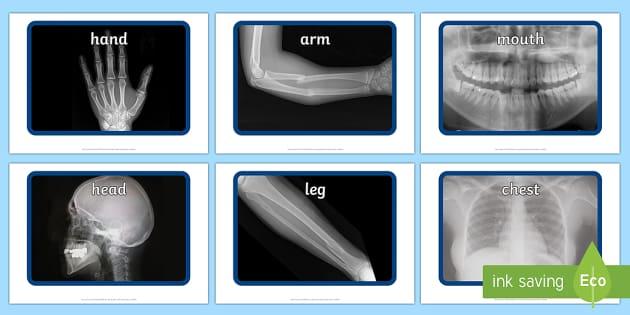 X ray Display Photos
