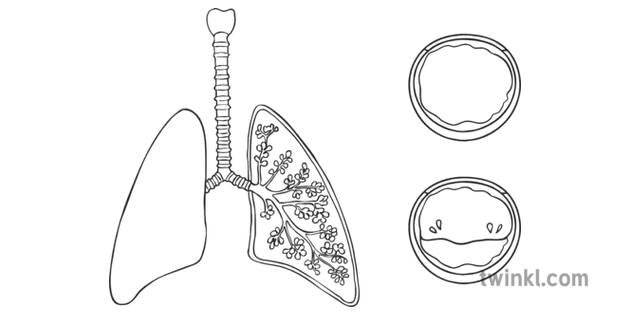 Cystic Fibrosis Lungs Mucus Diagram Unlabelled Genetic