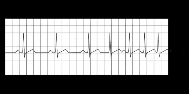 ECG Increased Heart Rate Diagram Hospital Emotions Life ...