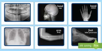 X ray Display Photos English/Romanian