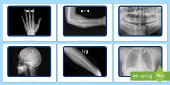 X ray Display Photos