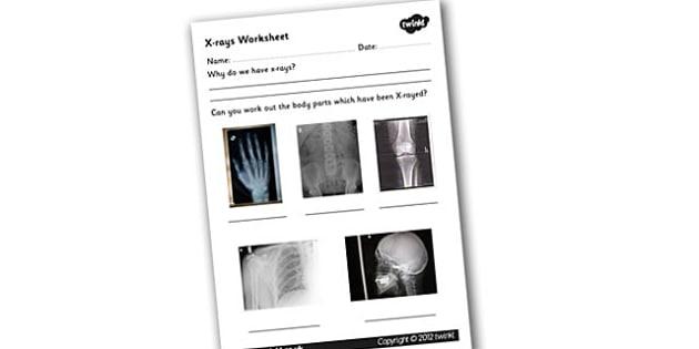 X-ray Worksheet - xray, x-ray, xray worksheet, bones, the human body, the human skeleton, xray equipment, skeleton worksheet, bones worksheet, ks2 science