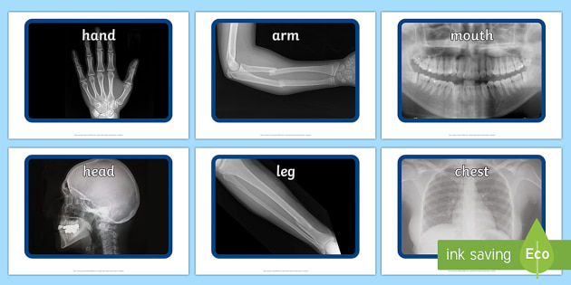 photo relating to Printable X Rays called X-Ray Show Visuals